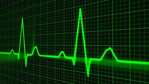 services ekg - EKG / HOLTER MONITOR